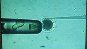 Zapładniana komórka jajowa